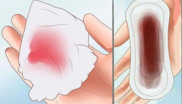 Ra máu khi mang thai