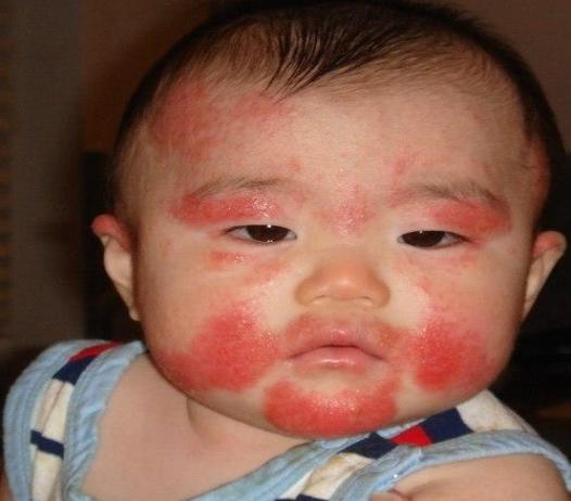 Trẻ nổi mụn đỏ khắp người