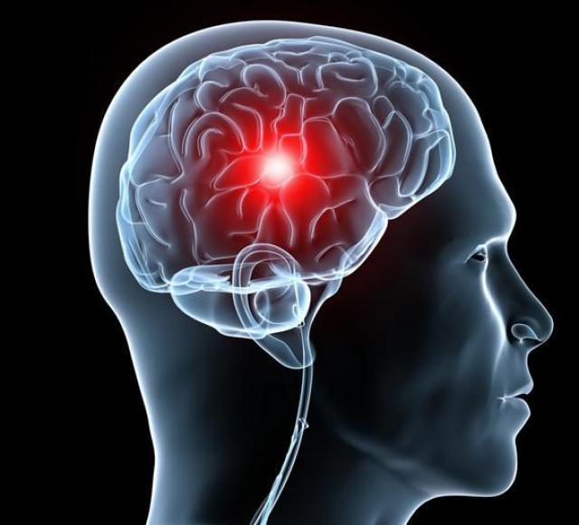 Hội chứng Tăng Áp Lực Sọ Nồi