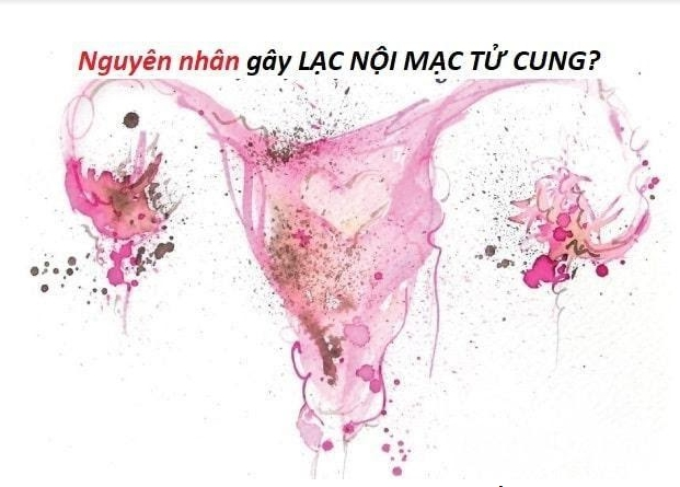 Lạc nội mạc tử cung điều trị