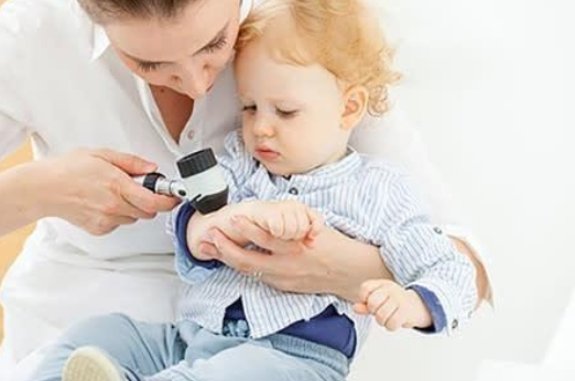 Trẻ bị di ứng thời tiếc uống thuốc gì