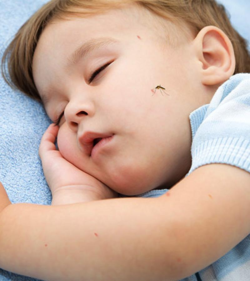12 Cách Trị Muỗi Đốt Cho Trẻ Sơ Sinh Cực Hiệu Quả 1